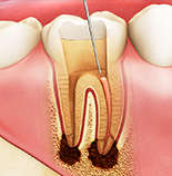 根管治療・虫歯治療