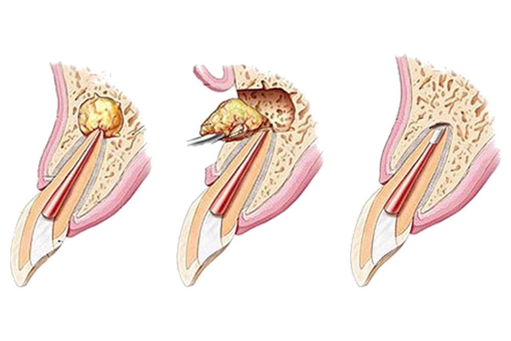 再植術・歯根端切除
