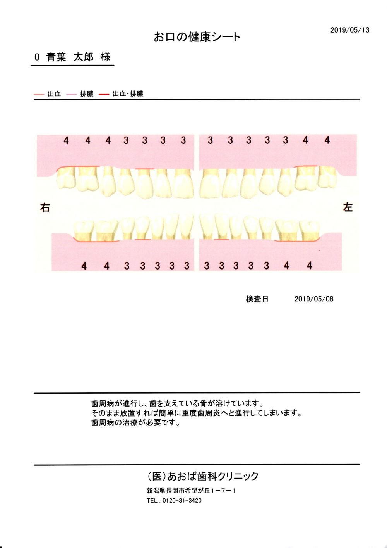 歯周病検査結果