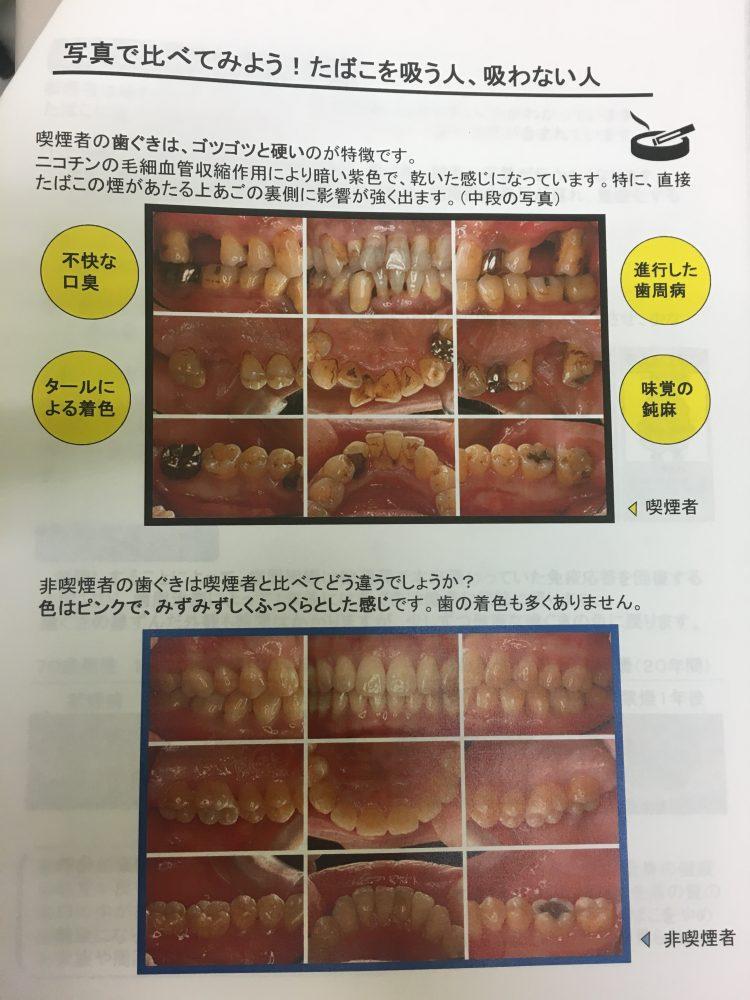 タバコと歯周病