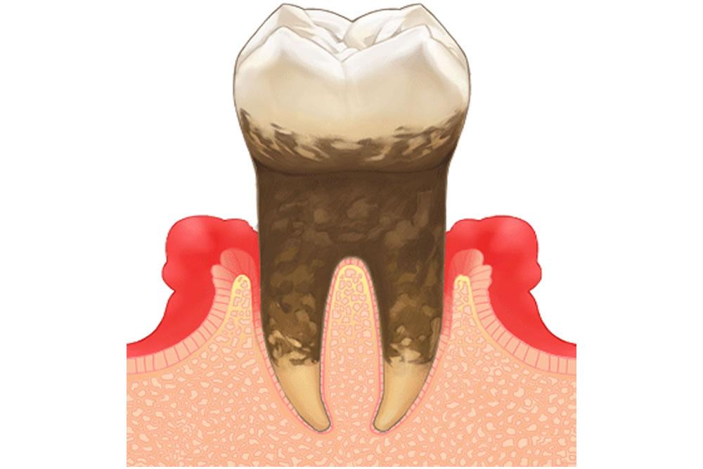 病気の治療(虫歯・歯周病)