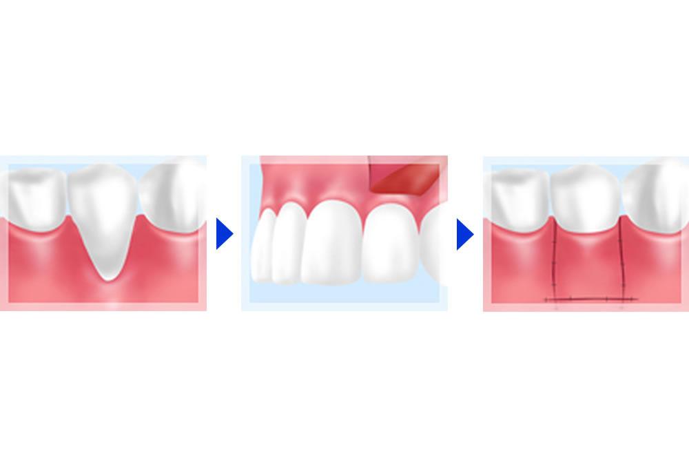 遊離歯肉移植術