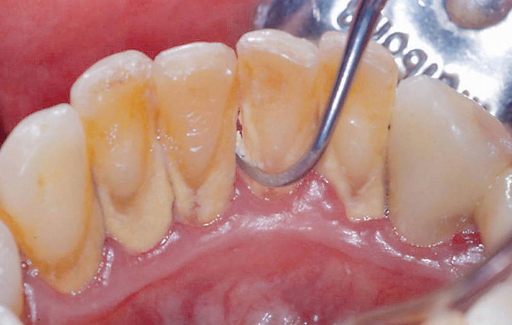 診断・歯石除去